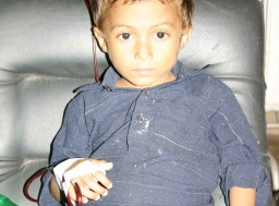 Thalassemia Child